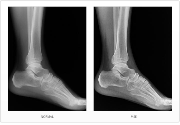 the other foot ray bradbury pdf